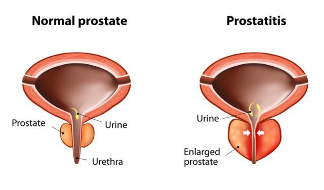 A vér a prosztatitisen túlléphet